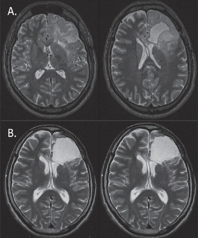 Regrese (B) (89% v T2) LGG u 33letého pacienta (pacient 6) s původně výraznou progresí (A) smíšeného oligoastrocytomu 32 měsíců po awake resekci s lokalizací řečových center bezprostředně posteriorně od původní postresekční dutiny. Po onkologické léčbě nedošlo ke zhoršení řeči, naopak došlo k ústupu epileptických záchvatů.
