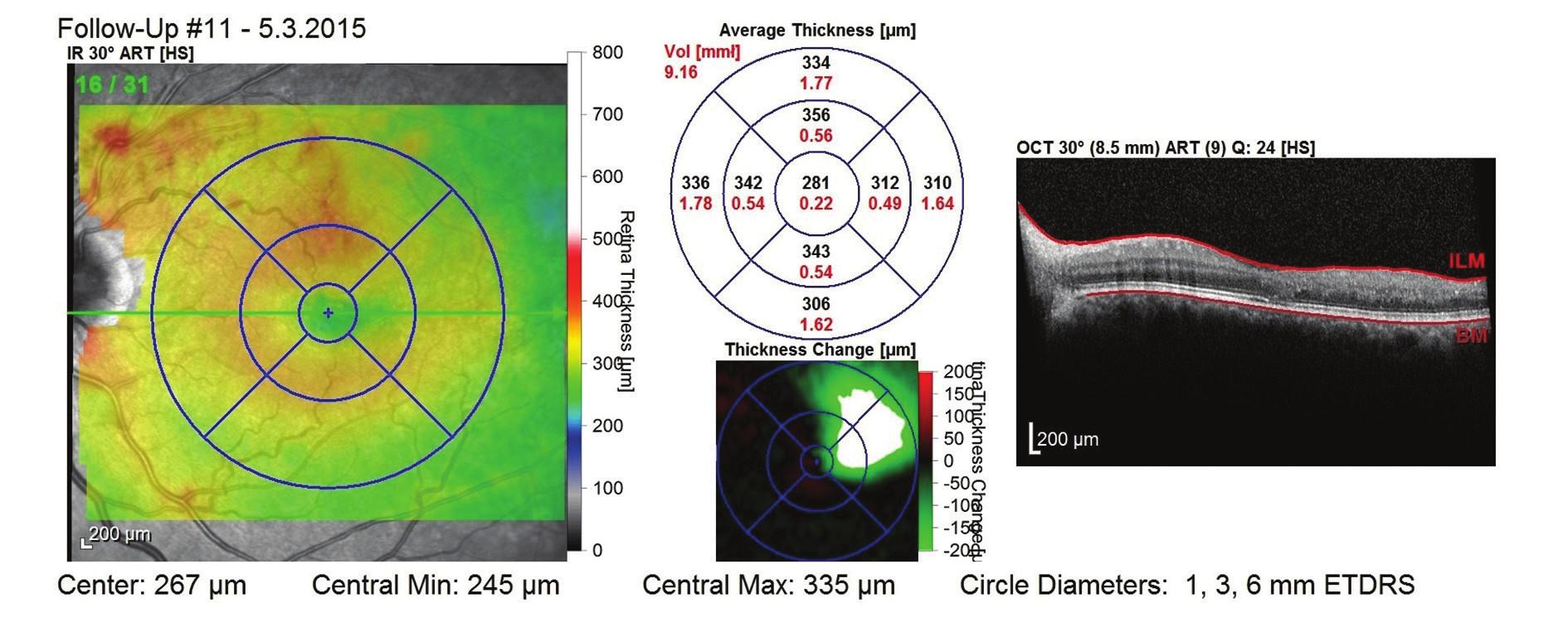 OCT snímek po 1. roce léčby (9 aplikací) – bez známek ME, mírná desorganizace zevních vrstev neuroretiny, CRT 281 μm a NKZO 85 písmen ETDRS optotypu