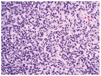 Solitární fibrózní tumor/hemangiopericytom mozkových plen, grade II (HE, 400x).