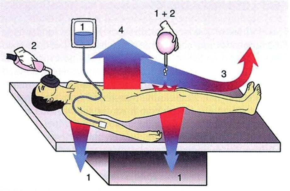 Schéma čtyř způsobů ztráty tepla pacienta na operačním stole
