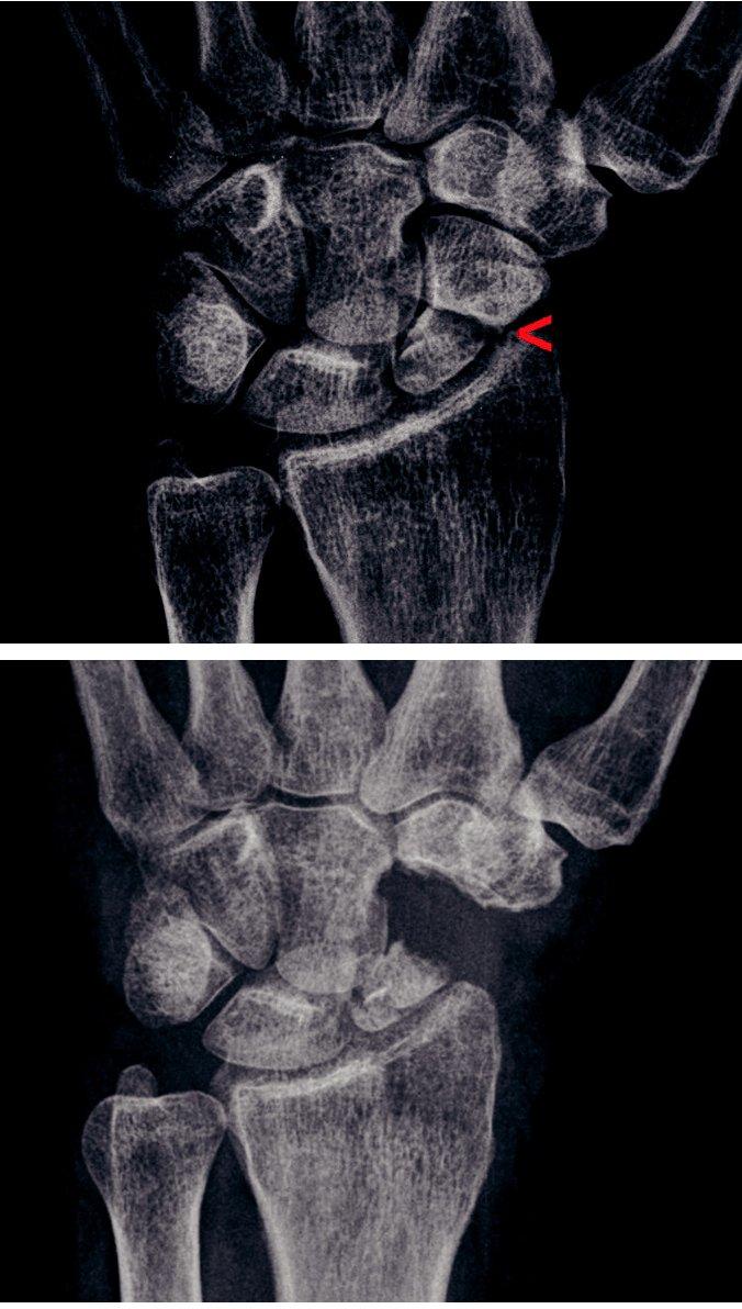 a) Pakloub člunkové kosti s artrotickými změnami typu SNAC III, šipka ukazuje oblast postižení mediokarpálního kloubu se zúžením kloubní štěrbiny a subchondrální sklerózou. b) Stav po proximální karpektomii s vytvořením neoartikulace mezi os capitatum a fossa lunata distálního radia.