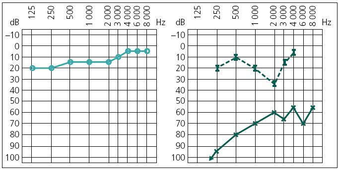 Obr. 2a. Předoperační audiometrické vyšetření, světle zelená pravé ucho (vlevo), tmavě zelená levé ucho (vpravo).