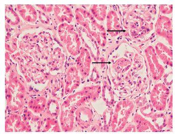 Obr. 5a Henoch-Schönleinova purpura. Ve dvou glomerulech označených šipkami jsou segmentální projevy zánětu. V horním glomerulu míří šipka na oblast endokapilární proliferace, spodní šipka označuje drobnou fibrinoidní nekrózu. Třetí glomerulus vlevo s nevýraznými projevy mesangiální proliferace. V imunofluorescenčním vyšetření dominantní exprese IgA. Barvení HE, zvětšení 200x.