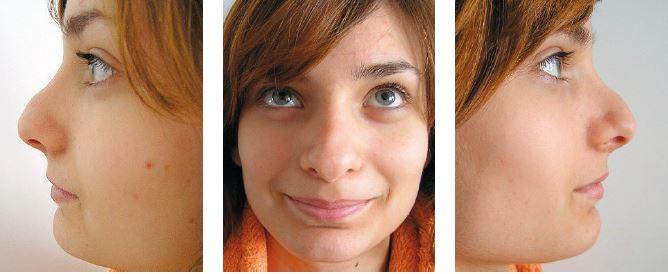 Pacientka po septorinoplastike so zobákovitou deformitou vonkajšieho nosa. Príčina je v ponechaní prednej a dolnej časti chrupkovokostného hrbu. Kostná časť bola odstránená správne.