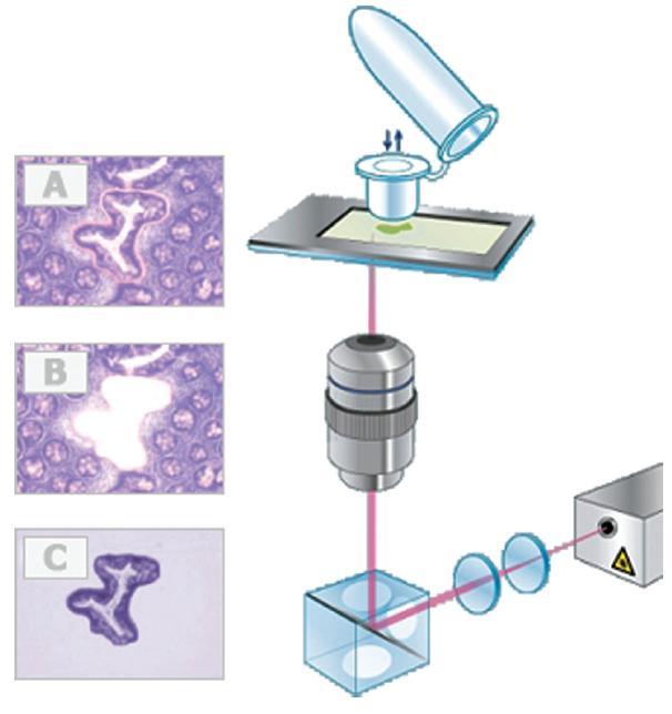 Mikrodisekce s použitím membránového rámečku. Tkáň je nanesena na inertní PET membránu hliníkového rámečku, obarvena (A), vyřezána laserovým paprskem (B) a mechanicky adherována na víčko mikrozkumavky se speciálním povrchem (C). Upraveno podle http://www.molecular-machines.com/home.