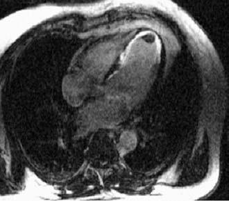 Infarkt myokardu s trombem. Subendokardiální kumulace gadoliniové paramagnetické kontrastní látky (bíle) v oblasti septa a hrotu odpovídá jizvě po infarktu myokardu. V hrotu je trombus.