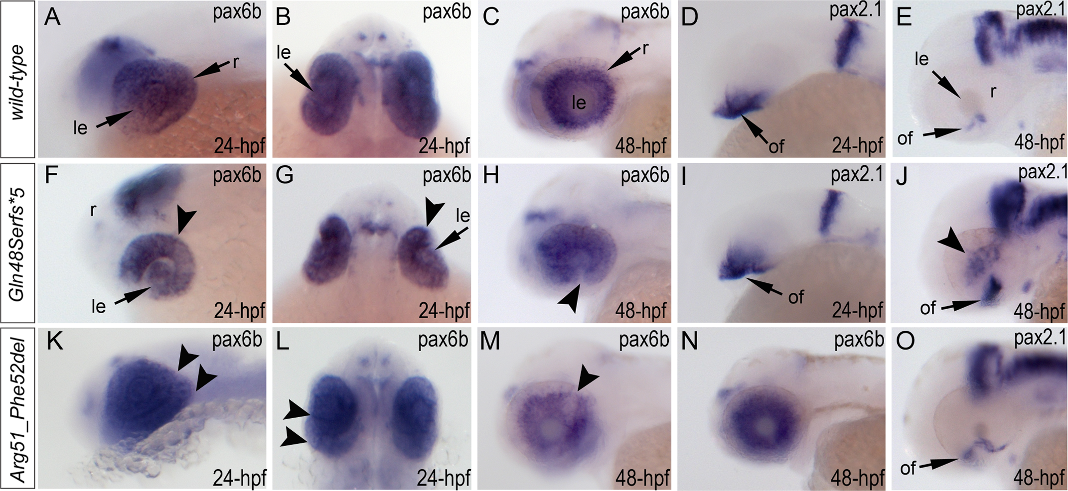 Analysis of <i>pax6b</i>, <i>pax2</i>.<i>1</i> and <i>foxe3</i> expression in wild-type, <i>mab21l2</i><sup><i>Q48Sfs*5</i></sup> and <i>mab21l2</i><sup><i>R51_F52del</i></sup> embryos.