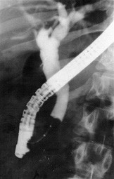 ERC – u pacienta z obr. 1. Po mechanické litotrypsi a poté kompletní endoskopické extrakci choledocholitiázy jsou při kontrolní ERC žlučové cesty již volné.