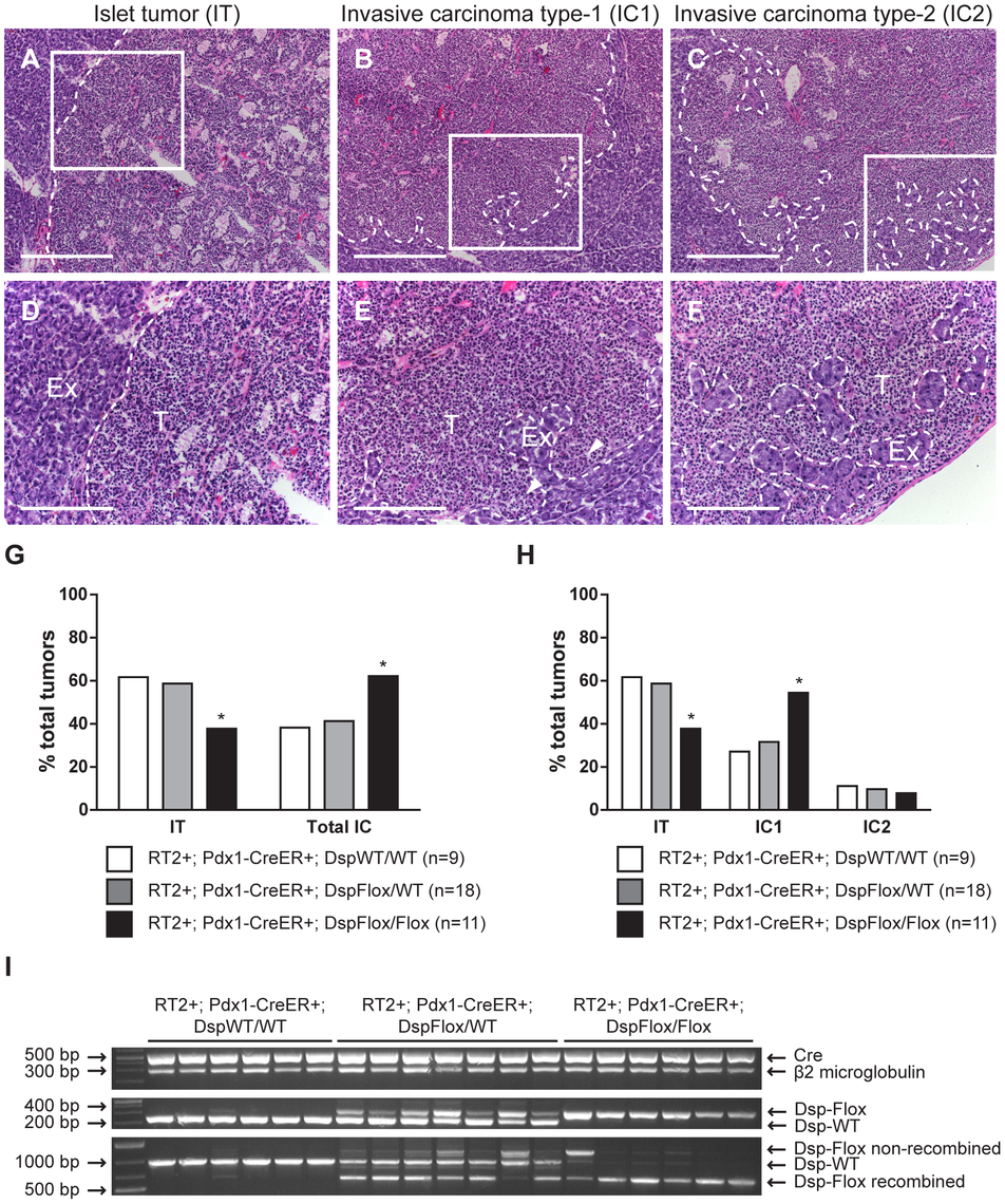 Genetic deletion of <i>desmoplakin</i> leads to increased local tumor invasion in <i>RT2</i> mice.
