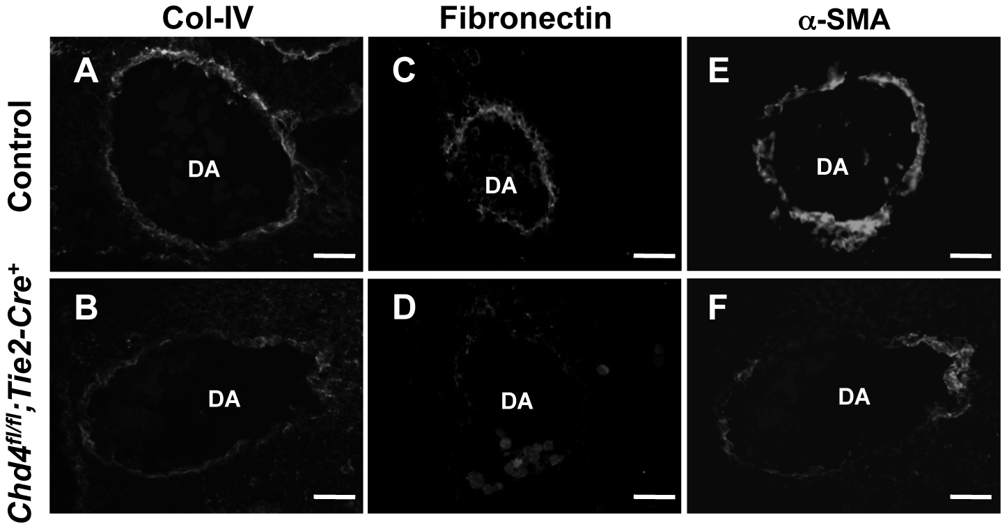 Extracellular matrix (ECM) components are diminished around <i>Chd4<sup>fl/fl</sup>;Tie2-Cre<sup>+</sup></i> vessels prior to rupture.