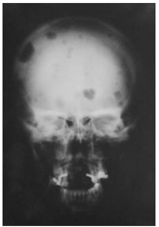 Osteolytická ložiska v lebce při terciární hyperparatyreóze. Podkladem jsou nádory z vícejaderných obrovských buněk, tzv. hnědé tumory.