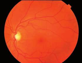 Obr. 1 a 2. Nález na očnom pozadí pravého a ľavého oka v 1. trimestri (farebná fotografia fundu). Na obidvoch očiach v makulárnej oblasti ojedinele mikroaneuryzmy
