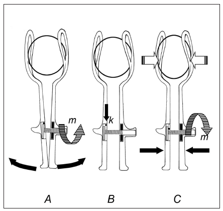Postup uzavření Shuteho forcepsu. Význam vysvětlivek tentýž jako u obr. 2. Komprese hlavičky je na vyobrazení přehnaná.