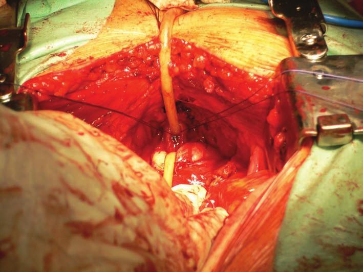 Odstřižení prostaty od uretry.