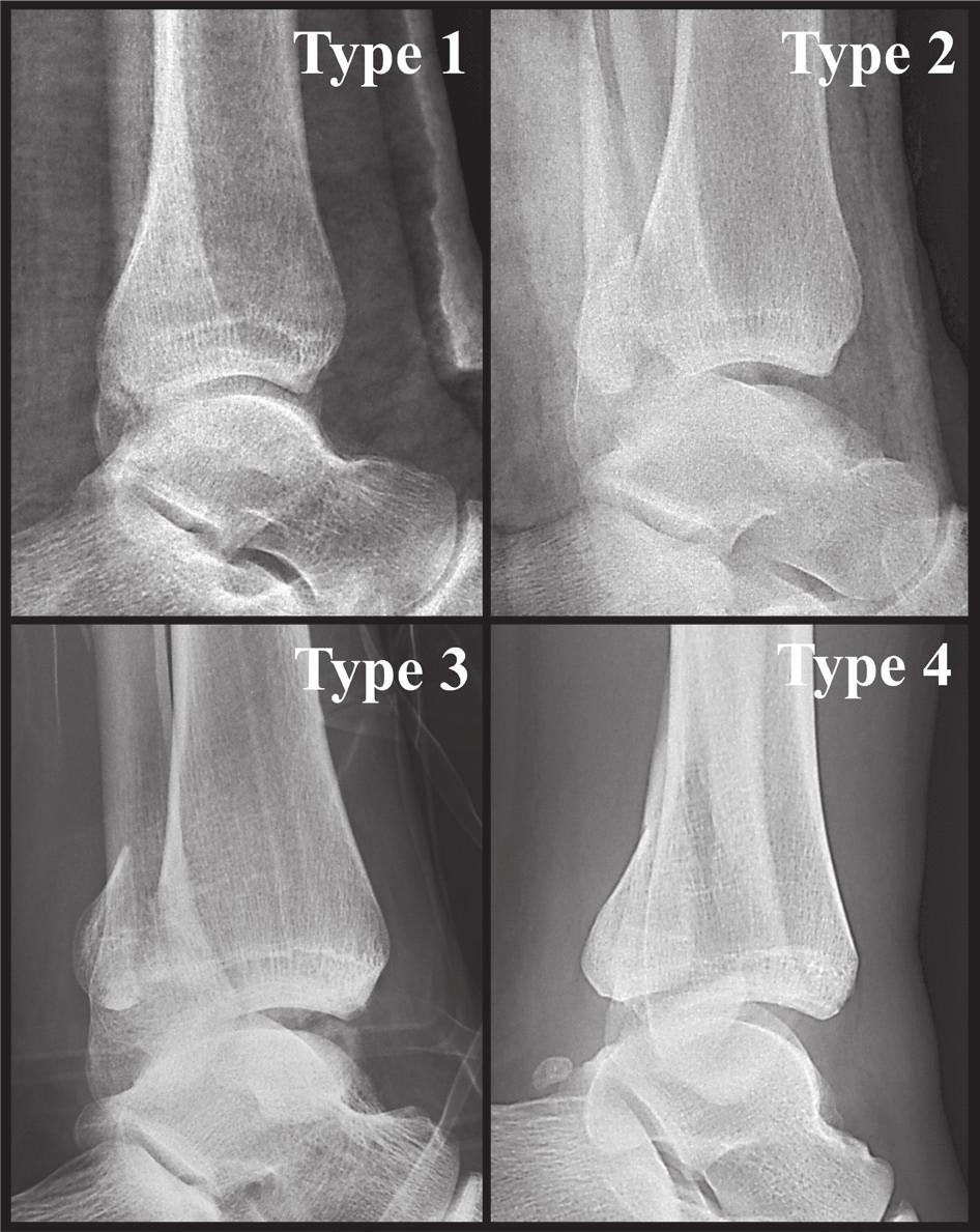 Anatomická 3D CT klasifikace z r. 2015 [34] Jednotlivé typy na rtg bočných snímcích. Fig. 7: Anatomical 3D CT classification published in 2015 [34] Individual types on lateral radiographs.