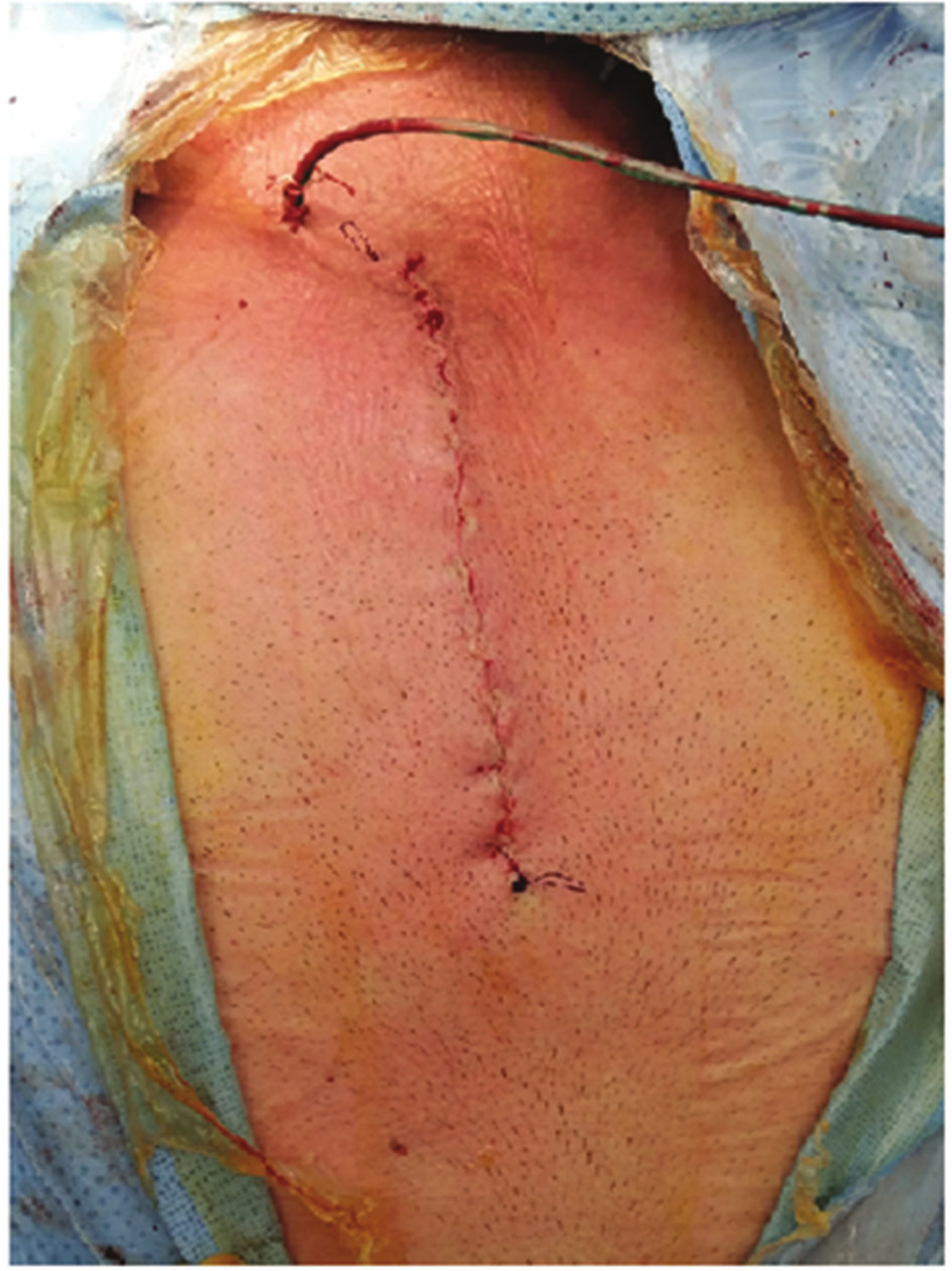 Parciální sternotomie Fig. 2: Partial sternotomy