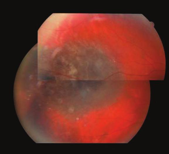 Pacient 1. Temporálne lokalizovaný MMCH s drúzami na periférii, pravé oko. Jeden rok po protónovej rádioterapii