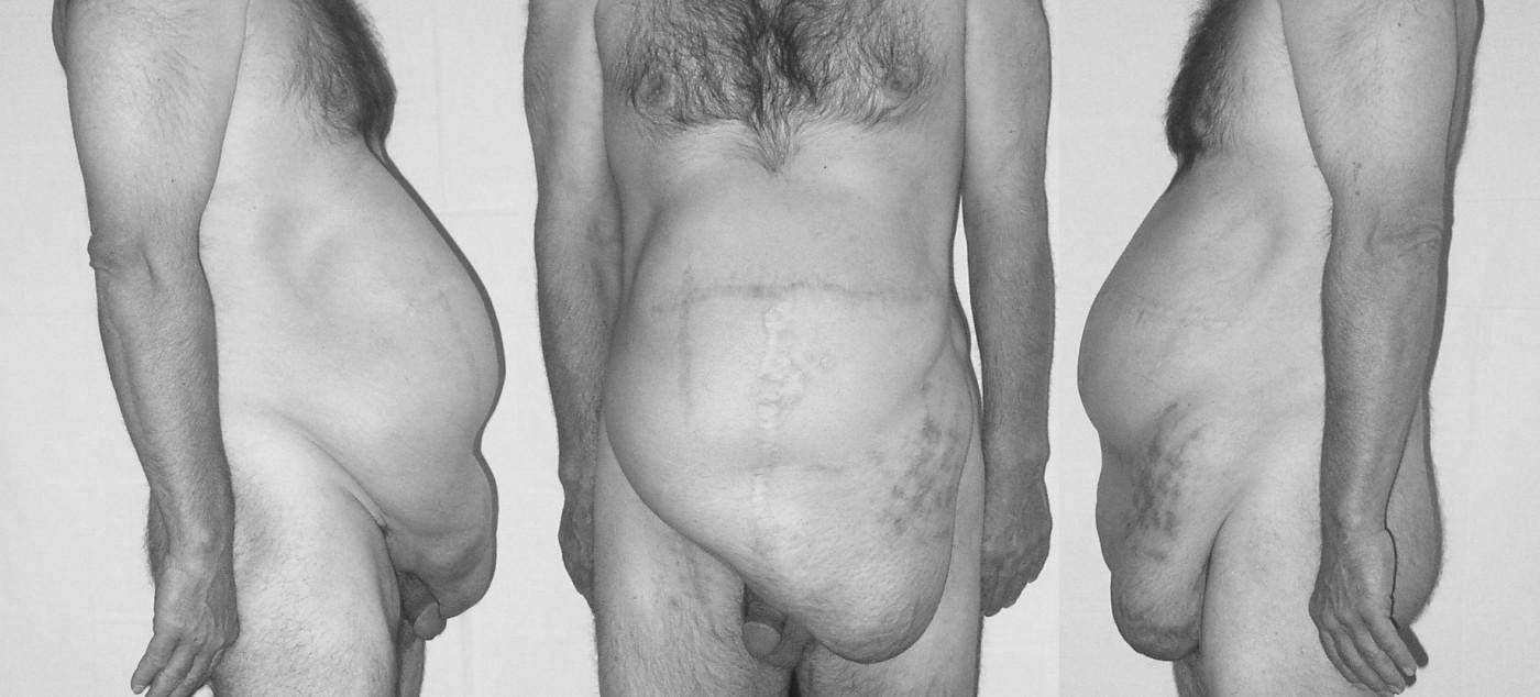 Osmá recidiva incizionální kýly – předoperační fotografie Pic. 4. Eighth recurrence of incisional hernia – preoperative photo