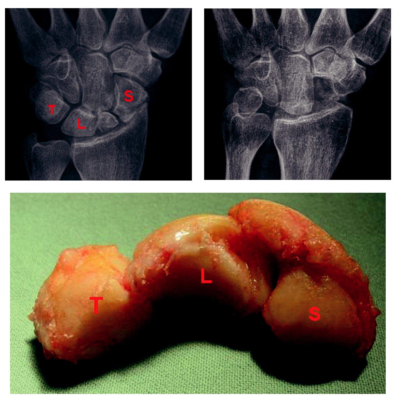 a) Pakloub člunkové kosti s artrotickými změnami typu SNAC II, písmena označují kosti, které jsou při proximální karpektomii exstirpovány: S = os scaphoideum, L = os lunatum, T = os triquetrum. b) Exstirpované kosti: S = os scaphoideum, L = os lunatum, T = os triquetrum. c) Stav po proximální karpektomii s vytvořením neoartikulace mezi os capitatum a fossa lunata distálního radia