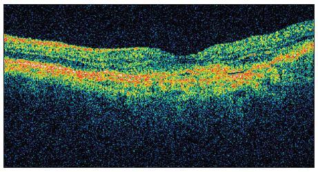 OCT OS září 2009 tlouštka neuroretiny ve fovee: 150 μm