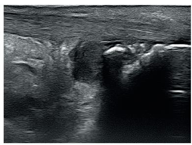 Obr. 2c Hypoechogenní Achillova šlacha s erozí Achillovy šlachy calcanea v místě úponu šlachy na kost.