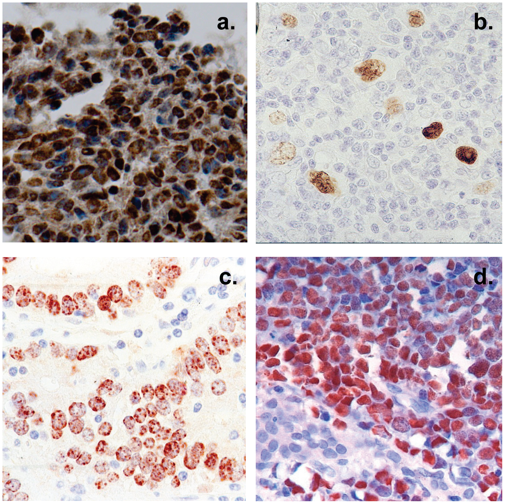 Histological cross sections of typical tumor biopsies used in this study stained for expression of EBV genes.