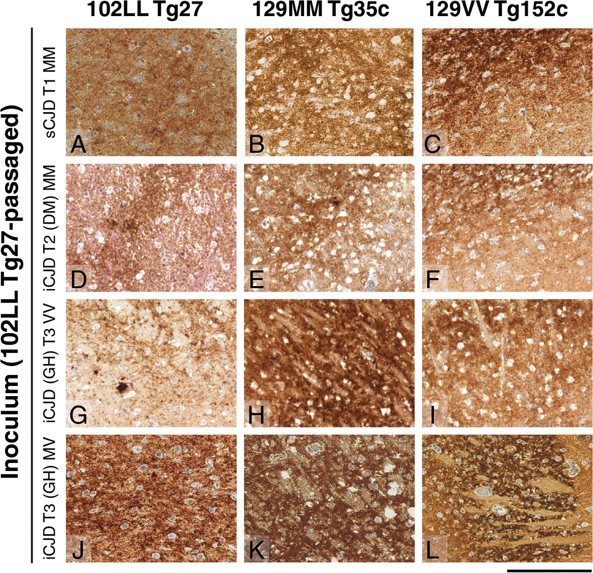 Immunohistochemical detection of abnormal PrP deposition in brains of transgenic mice challenged with CJD-102L prions.