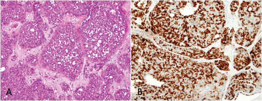 Fig. 1. Cribriform adenocarcinoma of tongue (CAT). A: Hematoxylin and eosin (HE), 200x. B: Positive p16 immunohistochemical staining with patchy pattern (score 2+), 200x.