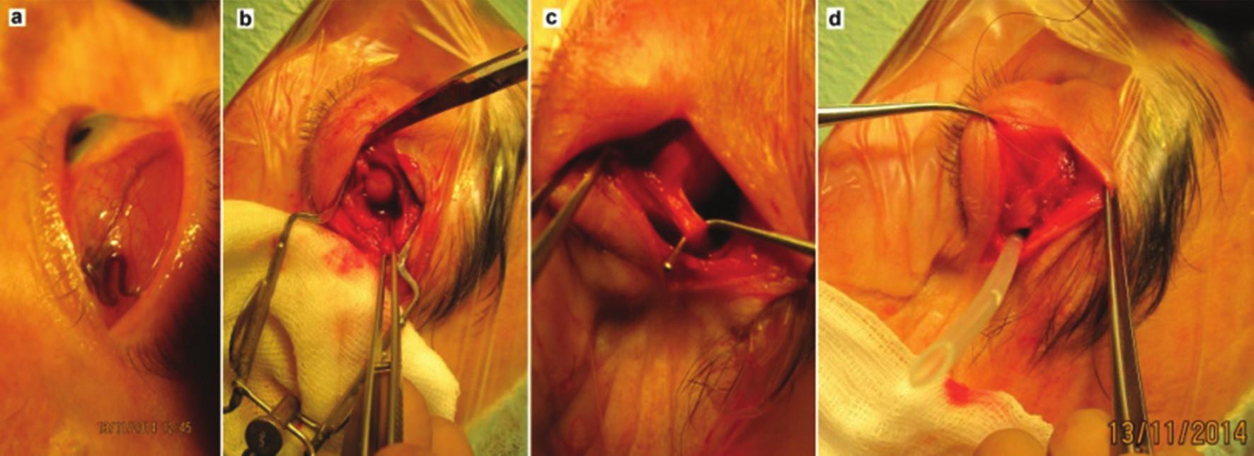 Pacient s lymfómom očnice infiltrujúcim horný temporálny kvadrant spojovky a fornix: a) klinický obraz pred začatím operácie, b) peroperačne vizualizácia nádorového ložiska, c) ložisko pod úponom horného šikmého svalu, d) pred ukončením zákroku naložený drén