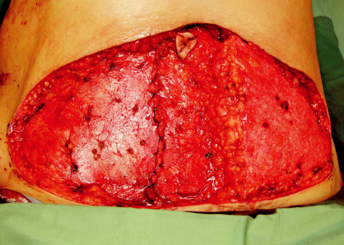 Fig. 3a. The left hemi-abdominal flap was not elevated but de-epithelialized and buried under the abdominoplasty flap