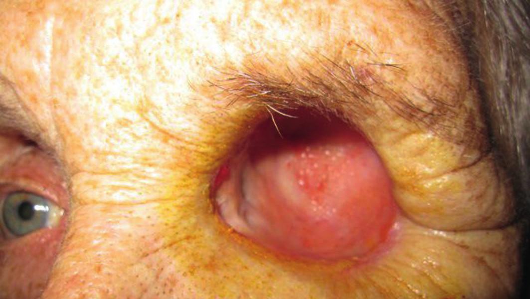 Viac ako jeden mesiac po exenterácii očnice, hojenie bez komplikácií