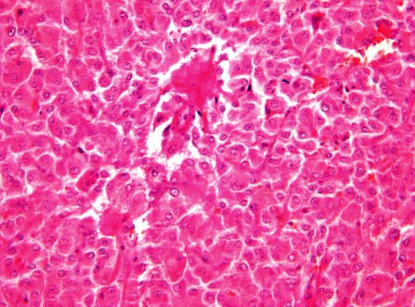 Histologická struktura extraadrenálního paragangliomu, barvení hematoxylin-eosin, zvětšení 200x Fig. 3. Histological structure of the extraadrenal paraganglioma, hematoxylin-eosine staining (HE), enlargement 200x