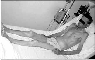 Vzhled nemocného s marantickým typem malnutrice a sarkopenií