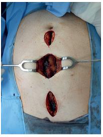 Fasciotomie v linea alba při intraabdominální hypertenzi Fig. 5: Linea alba fasciotomy for abdominal compartment syndrome