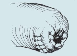 Modifikovaná parciální amputace penisu. Modifikace provedení parciální amputace penisu a rekonstrukce pahýlu penisu. A: Incize kůže. B: vytvoření přesahujícího dorzálního laloku. C: Gilotinové přerušení kavernózních těles a uzávěr matracovými stehy. Pahýl uretry přesahuje o 1 cm corpora cavernosa. D: vytvoření otvoru v kožním laloku a spatulace uretry. E: anastomóza laloku a uretry (Vicryl 4-0, uzávěr kožního laloku).