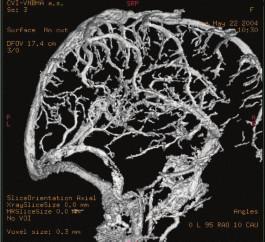 Kontrolní angiografie po trombolýze.