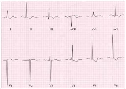 EKG u těžké stenózy aorty ukazuje hluboký kmit S ve V1 a vysoké kmity R ve V5 se změnami ST-T poukazující na hypertrofii levé komory.