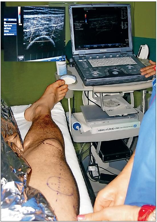 CHANGES IN DONOR SITE SELECTION IN LOWER LIMB FREE FLAP