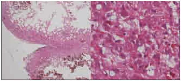 Histologický preparát, vlevo zachovalá rozšířená folia mozečku (HE, 20krát), vpravo dysplastické gangliové buňky kory mozečku (HE, 200krát).