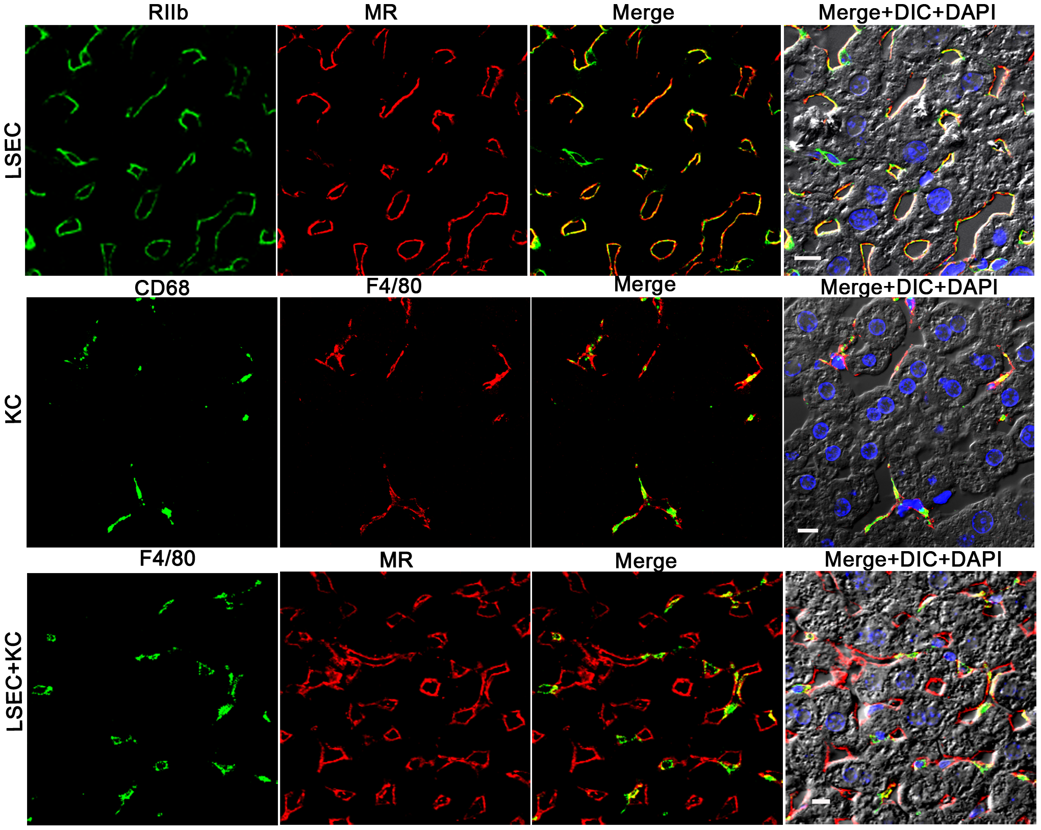 Three-color immunofluorescence images showing LSEC and KC markers in mouse liver.