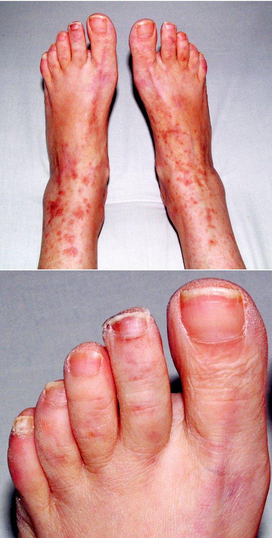 1A a 1B. Kožní výsev v rámci vaskulitidy.