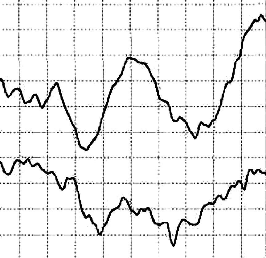 Sumačné krivky z vyšetrenia vizuálnych evokovaných potenciálov u pacientky č. 1 (horná krivka – ľavé oko, dolná krivka – pravé oko)