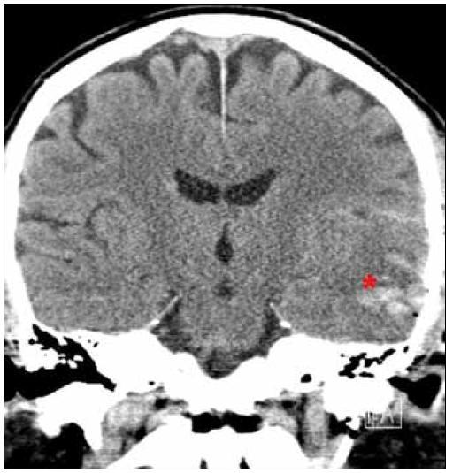 Poúrazové CT. *Rozvíjející se kontuzní ložisko temporálně vlevo.