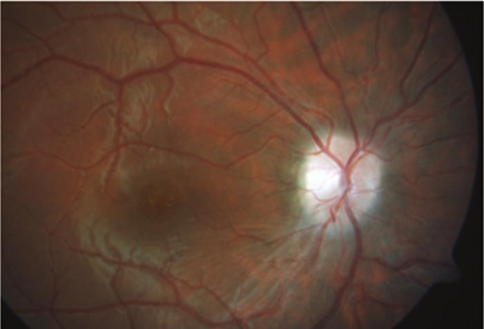 Po čtyřech měsících léčby došlo k dalšímu ústupu edému terče zrakového nervu vpravo