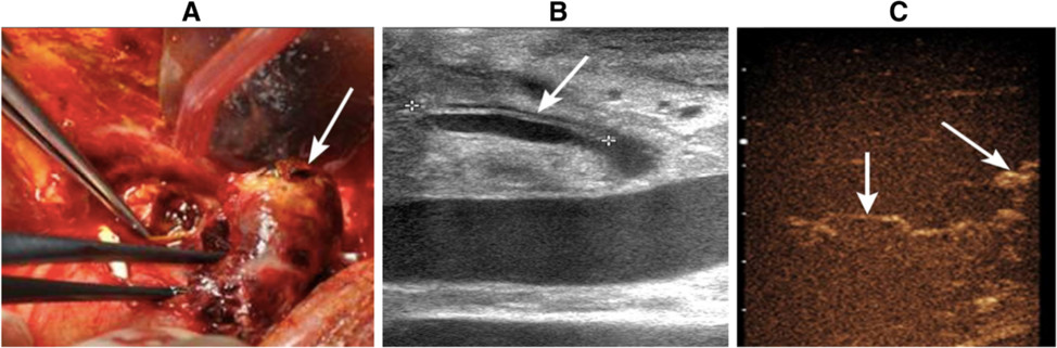 A blood clot that was 4 × 3 cm in size was found in the hilus hepatis during urgent exploratory laparotomy (<i>arrow</i>). b Hepatic artery dissection was identified by gray-scale ultrasound. c Intraoperative CEUS revealed the opening of collateral circulation