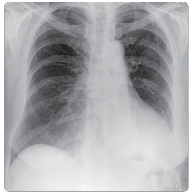 Fig. 3. Postoperative X-ray three months after the surgery.