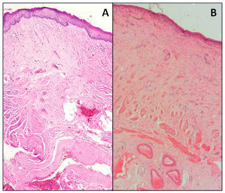 Histologická stavba poševní stěny u ženy (A) a u ovce (B)