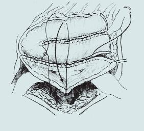 Sigmoideální augmentace. (A – izolace sigmoidea se zachováním výživy větví a. colica inferior, B – izolace sigmoidea s použitím stoperu, C – rekonfigurace detubularizovaného sigmoidea a anastomóza s rozpolceným m. měchýřem)