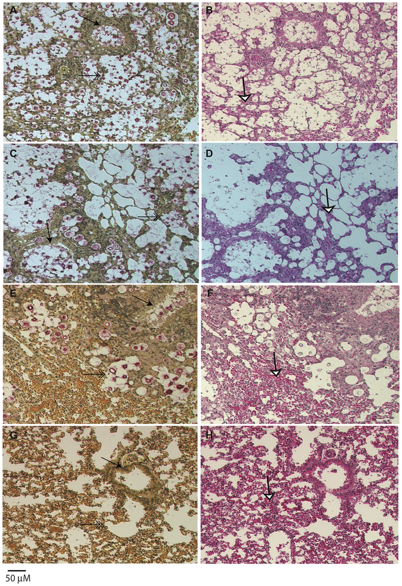 Histopathology of lungs of mice infected with <i>C. gattii</i>.