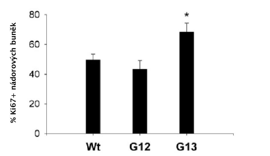 Zastoupení Ki67+ nádorových buněk ve vztahu k mutaci K-ras Wt (wild-type), pacienti bez přítomnosti mutace n=24; G12, pacienti s mutací v kodonu 12 n=13; G13, pacienti s mutací v kodonu 13 n=7. Graph 1: Proportions of Ki67+ tumour cells according to K-ras mutational status Wild-type (Wt) patients, n=24; patients with a mutation in codon 12 (G12), n=13; patients with a mutation in codon 13 (G13), n=7.